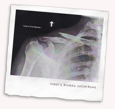 Matt's broken collarbone X-ray